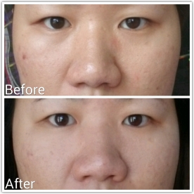 Double Serum 7-day result