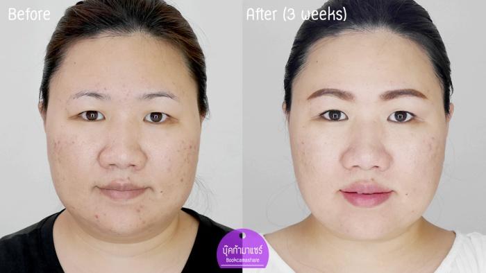 bookcamashare-koko-skincare-serum-cream-sunblock-suiren-lavender-cosmatic-01