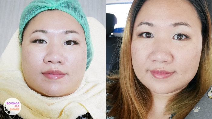 paulas-choice-facial-treatment-new-you-clinic16