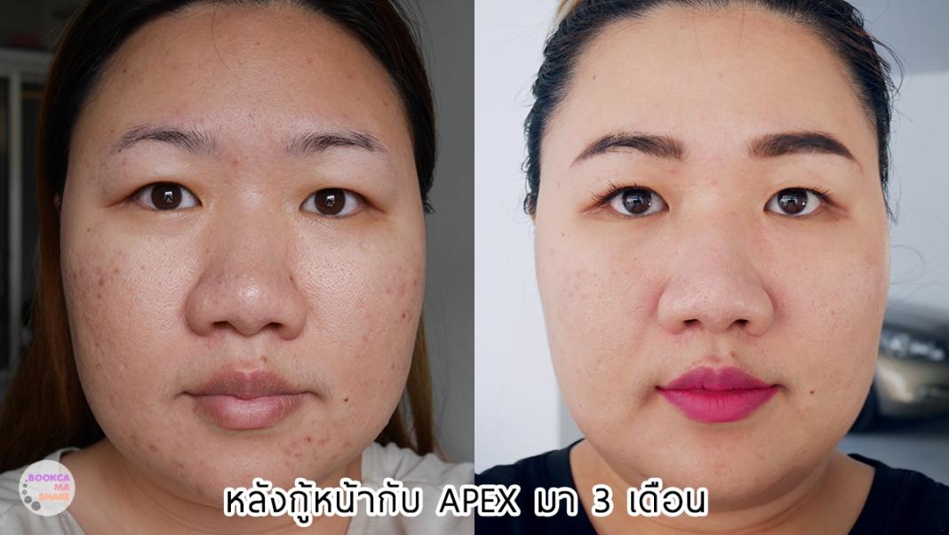 Apex-Profound-Beauty-acen-ppp-beauty-fast-lane-23-2