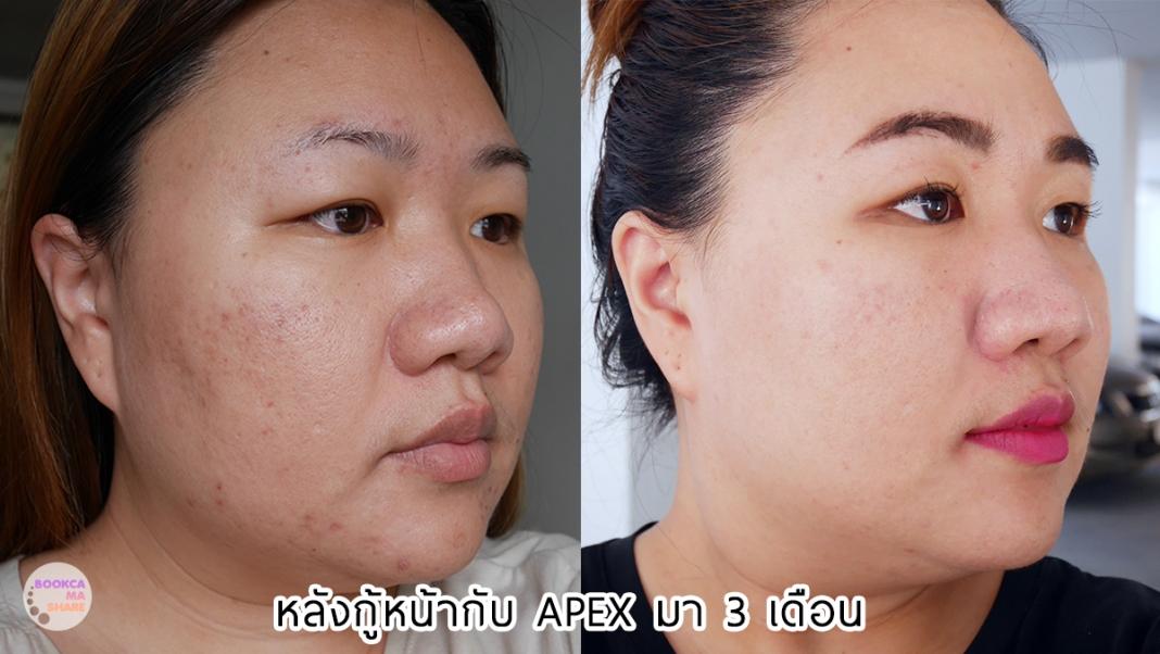 Apex-Profound-Beauty-acen-ppp-beauty-fast-lane-24-2