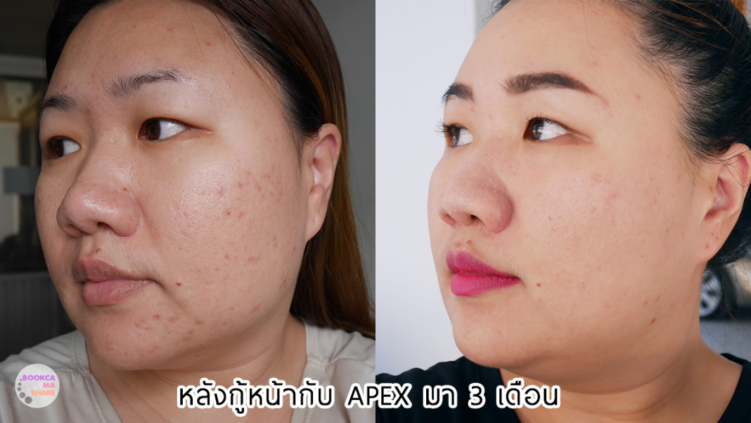 Apex-Profound-Beauty-acen-ppp-beauty-fast-lane-25-2