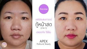 Apex-Profound-Beauty-acen-ppp-beauty-fast-lane-s