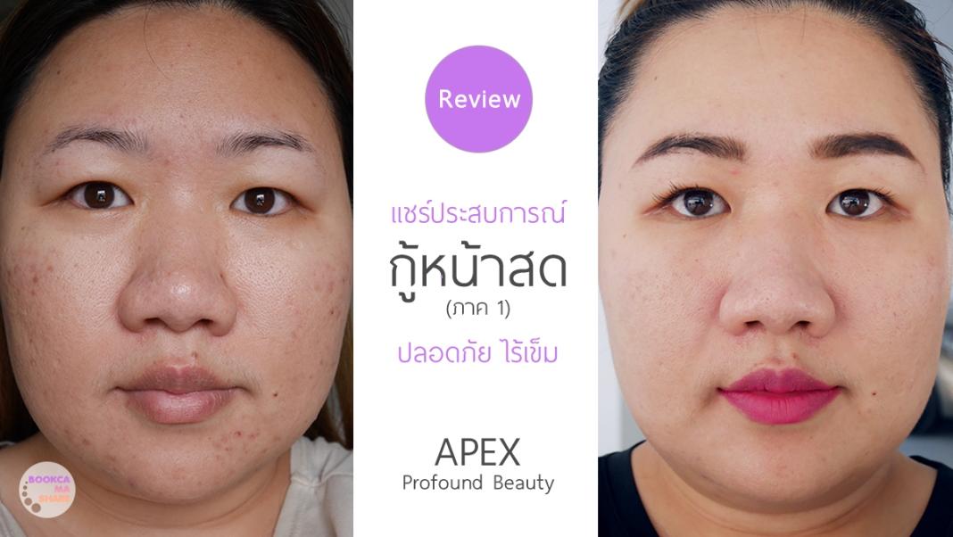 Apex-Profound-Beauty-acen-ppp-beauty-fast-lane